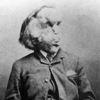The life of Joseph Merrick – the Elephant Man